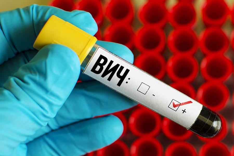 кровь на ВИЧ: положительно